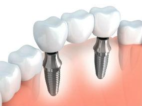Implants provided at Quincy Dental Center, Dr. Pritts, DMD, Quincy, IL Dentist