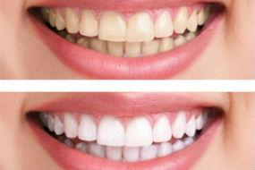 Teeth Whitening available at Quincy Dental Center, Dr. Pritts, DMD, Quincy, IL Dentist